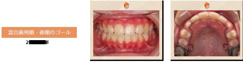 混合歯列期・後期のゴール